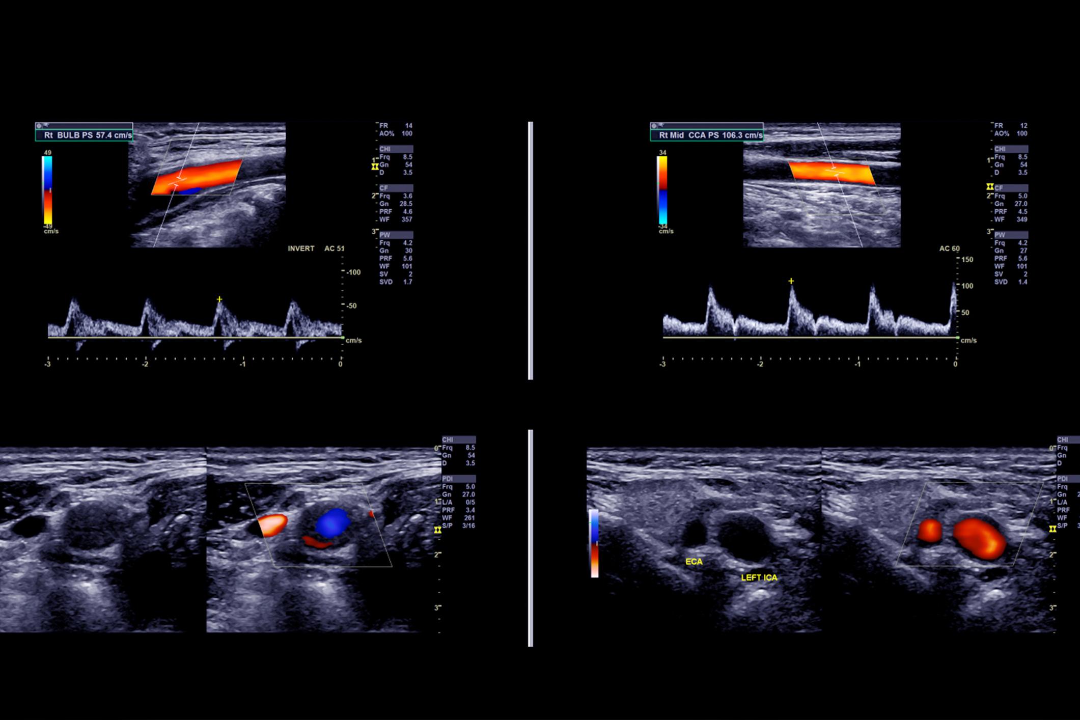 Facharzt Omid Raissi Duplexsonografie