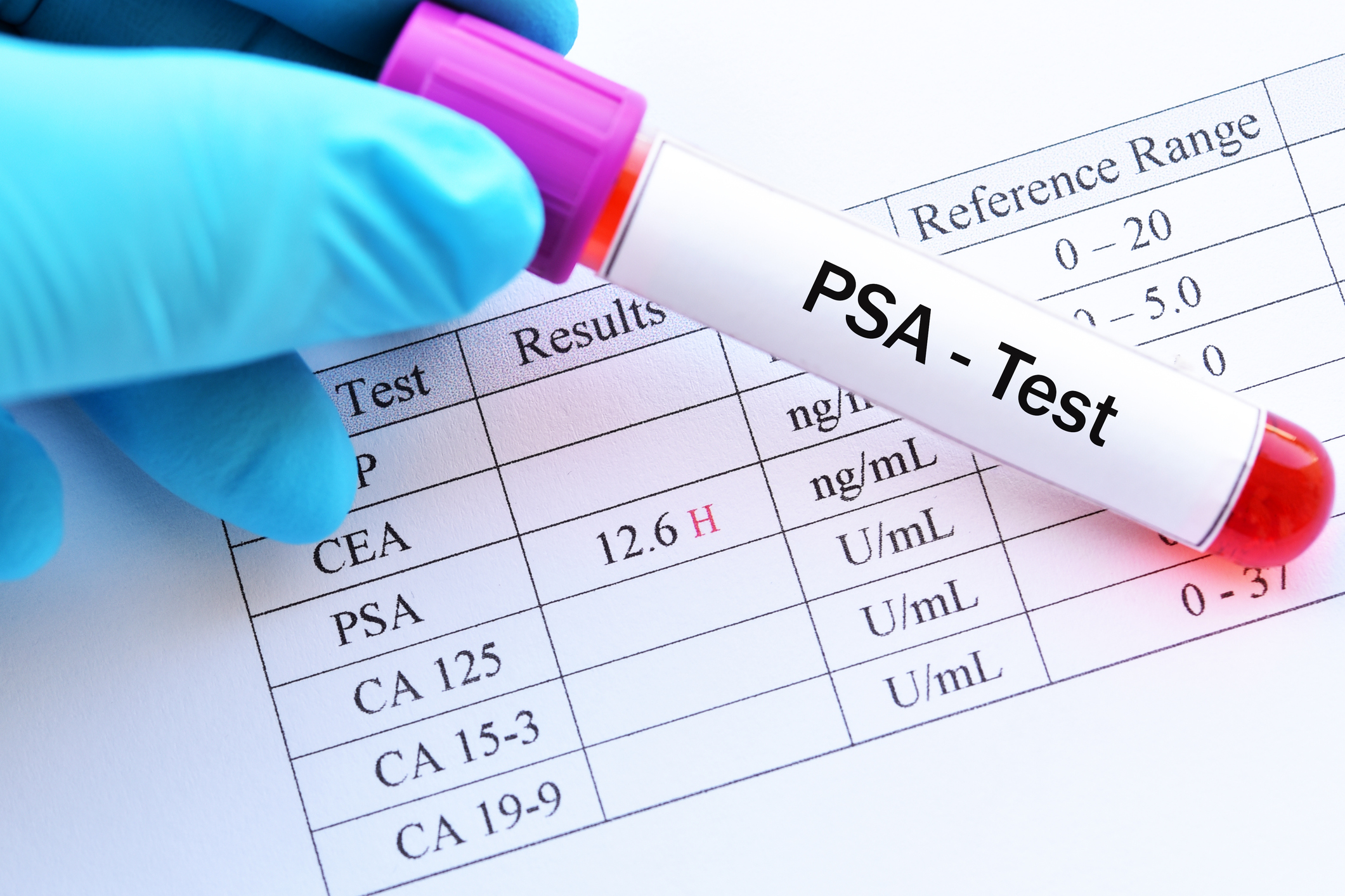Facharzt Omid Raissi Krebsvorsorge PSA Test